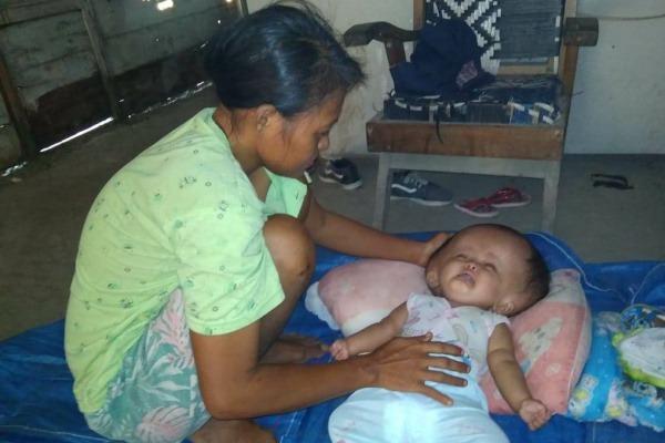 Siti Masiroh (6 bulan) batita dengan kepala membesar tergolek lemah tanpa perawatan medis lantaran ketiadaan biaya