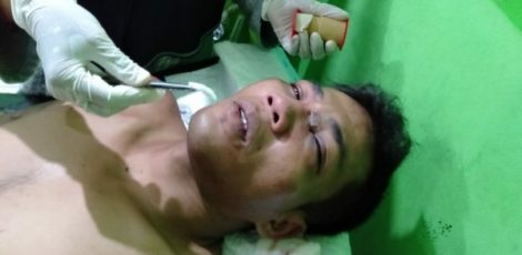 Tersangka curanmor Supadi alias Jhon (29) menjalani perawatan medis usai dihajar massa