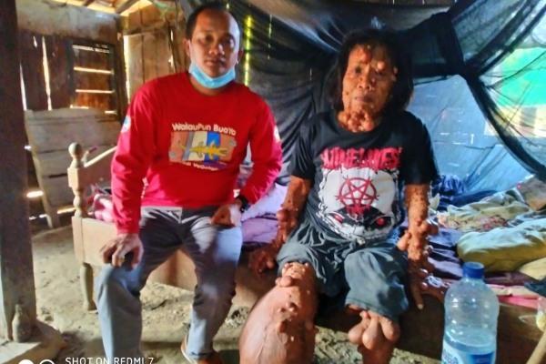 Kades Pengkoljagong, Sugiyono mengunjungi warganya yang mederita tumor